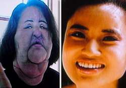 plastic surgery addict injects cooking oil into her own face
