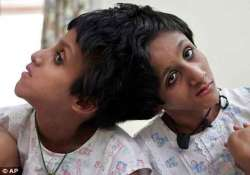 conjoined twins saba farah admitted to patna hospital